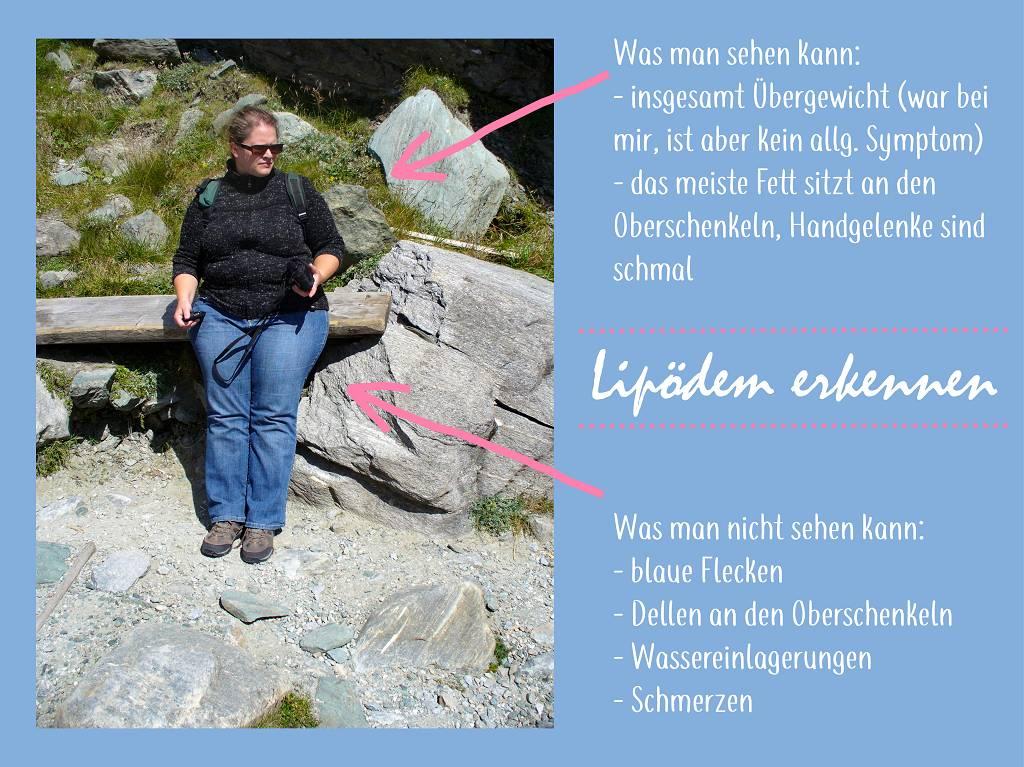 Eine Frau mit Lipoedem lehnt an einem Stein